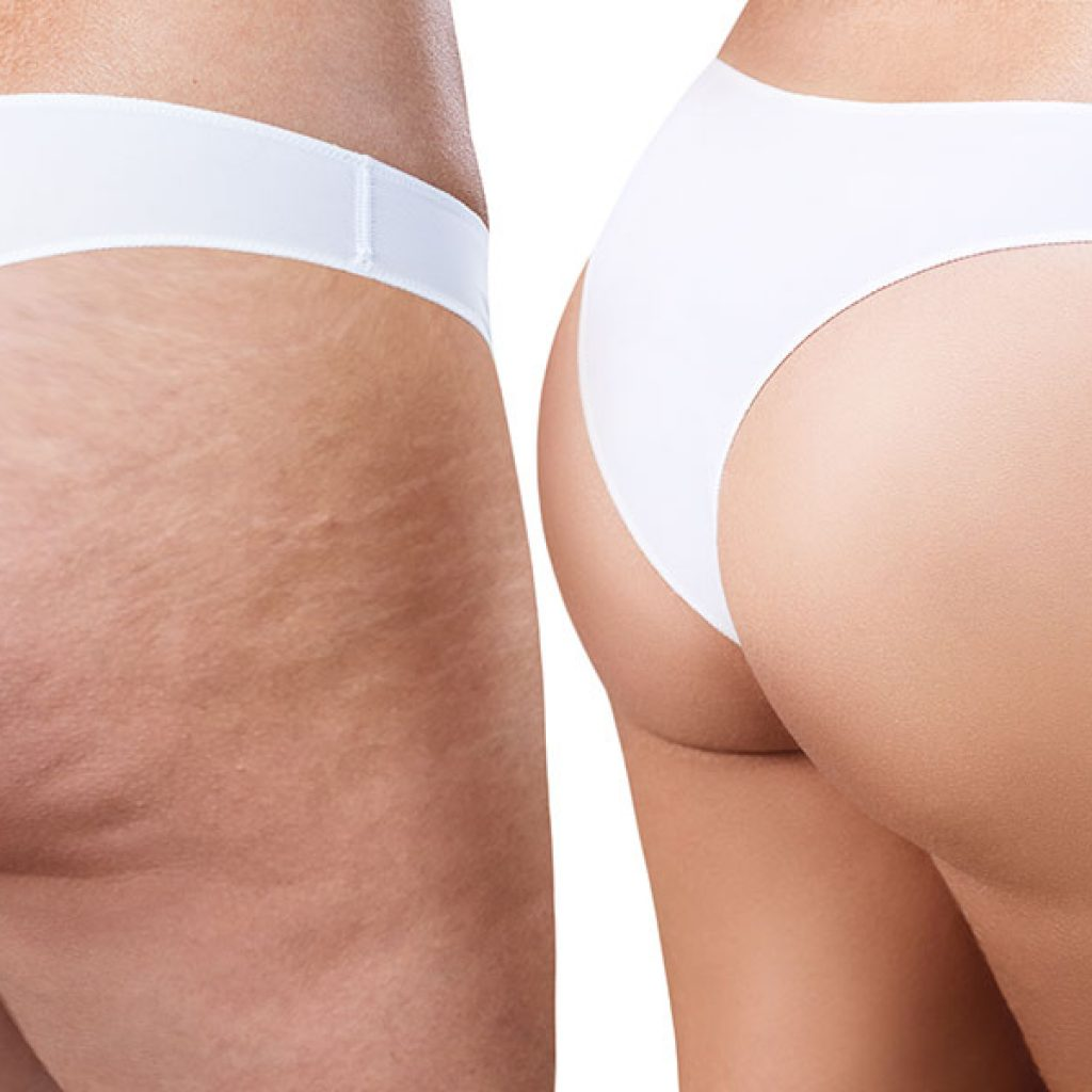 pure-c-unterberger-cellulite